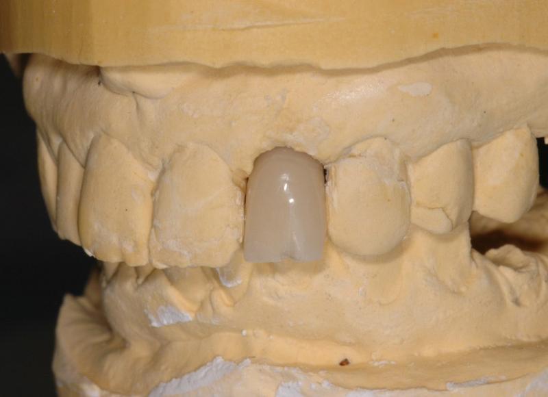 Realizzazione corona provvisoria con moncone in titanio avvitato
