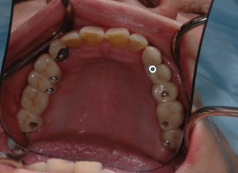 Provvisori avvitati nel cavo orale