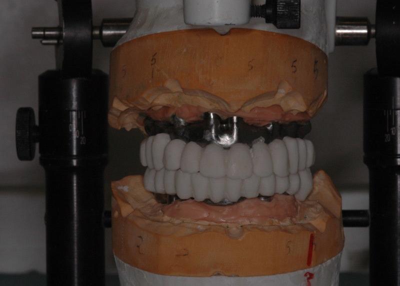 Barre con prototipazione in resina - vista frontale