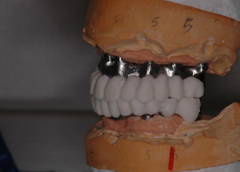 Barre con prototipazione in resina - vista laterale
