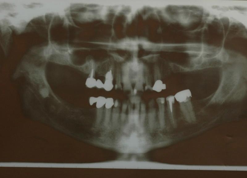 Radiografia prima del trattamento