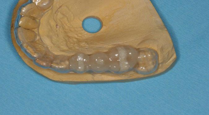 La placca per TAC e guida implantologica