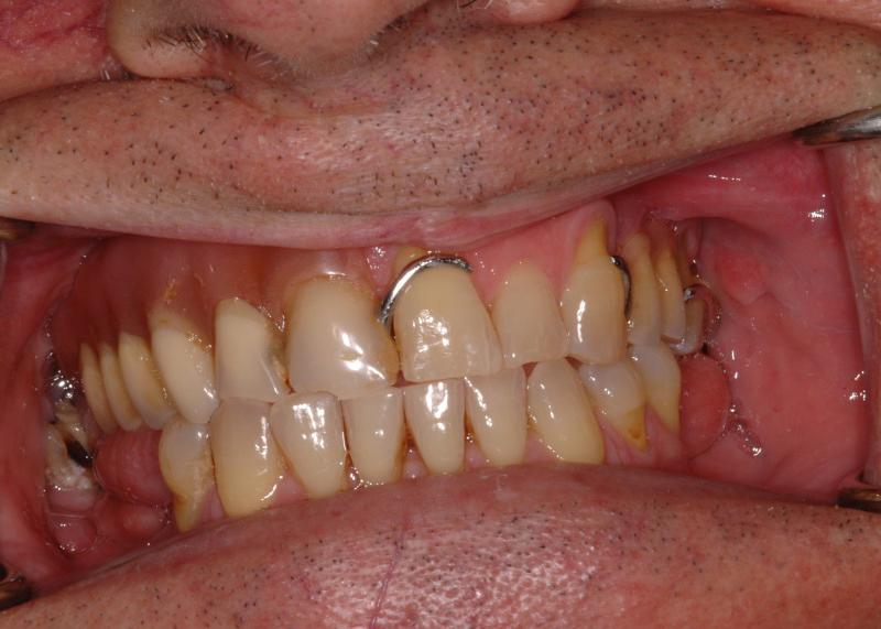 Vecchia protesi con ganci e denti usurati
