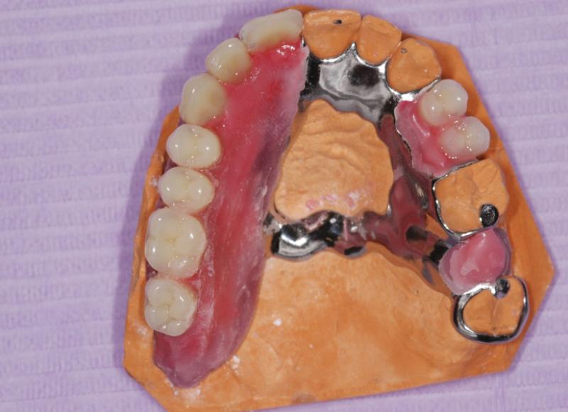Lavorazione in laboratorio - scheletrato e prova denti in cera