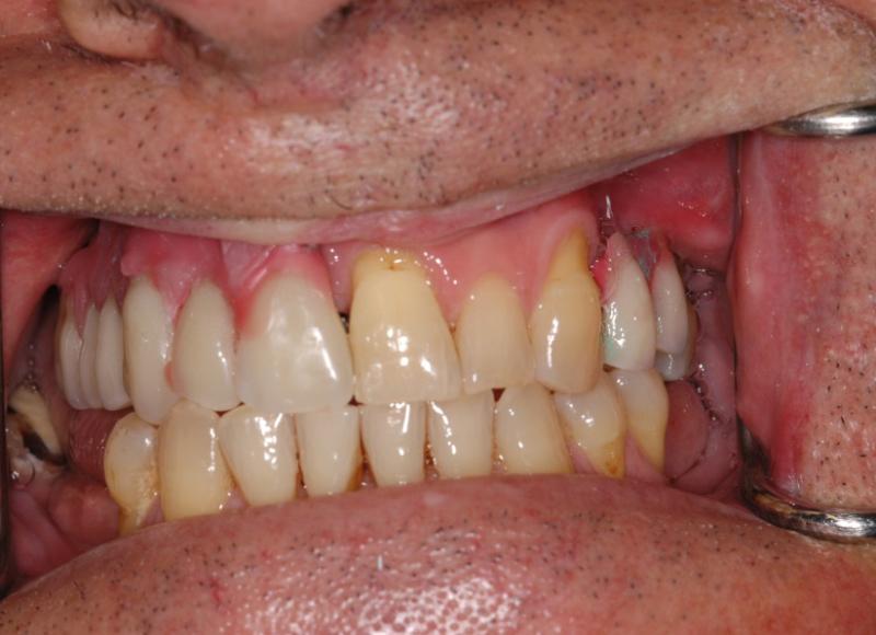 Prova estetica con denti fissati in cera