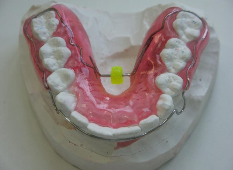 Ortodontici rimovibili