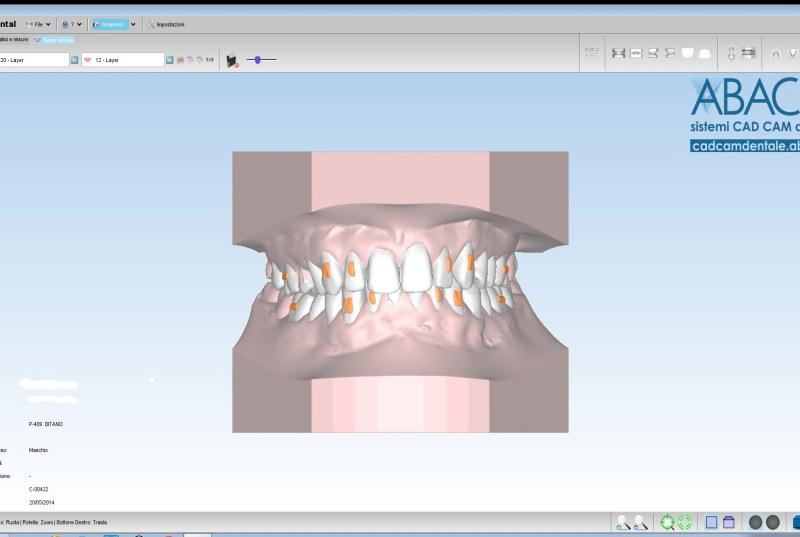 Visione al CAD di setup ortodontico